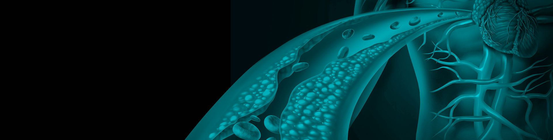 Curso teórico práctico: Diagnóstico y manejo integral de las dislipidemias